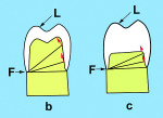 Fig 8. The shorter and wider the preparation form, the less resistance form is present.