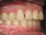Figure 7  Right lateral view after orthodontic treatment.