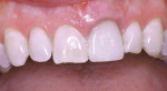 Final post-treatment photo showing significant improvement in the incisal half and the gingival half.