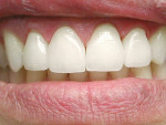 Figure 11  First set of veneers rejected by patient.