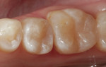 The completed disto-occlusal SonicFill 2 composite restoration on tooth No. 29 is shown from the occlusal aspect. An occlusal SonicFill 2 restoration was completed on tooth No. 30 at a previous appointment.