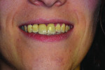 Figure 18 Patient's smile at 1.5-year follow-up.