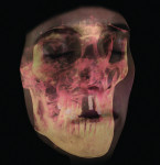Figure 19 GALILEOS FaceScanner.
