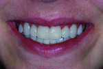 Figure 7 After veneers were aligned, the facial, incisal, and lingual aspects were each cured for 20 seconds.