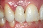 Figure 2B Alumina and zirconia restorations can successfully block out tooth discoloration, but its white opaque core also challenges the esthetic outcome of the restoration.