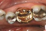 Figure 3  Pretreatment of a perforated gold crown previously repaired with amalgam.