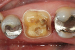 Figure 4  CEREC crown preparation after removal of the remaining restorative material.