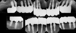 Figure 16 Post-treatment full-mouth radiographs.