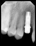 Figure 7 Radiograph of the left maxillary implant, im- mediately after placement.