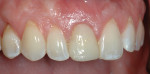 Figure 6 Healing 3 weeks after the tooth was extracted.