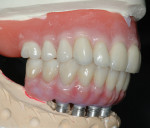 Figure 22 Lateral view of upper final denture opposing final zirconia bridge.