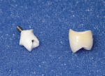 Figure1 Zirconiaabutmentandall-ceramiccrown.Becausedu- plicate abutments were created, the crown will fit both the origi- nal titanium abutment and the replacement zirconia abutment.