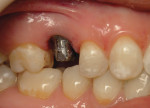 Figure 2 The titanium abutment made the overlying tissue appear discolored.
