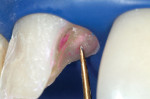 Figure 3  Initial caries removal. Application of caries-indicator solution did not stain the dentin. Extremely soft dentin often does not allow penetration of the dye, creating a false negative caries assessment (original magnification, 8x).
