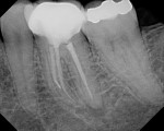 The patient presented with a separated file in the middle of the MB root, short fills on the mesial and distal roots, and a missed distal canal. Periapical lesions were present at the apex of the mesial and distal roots.