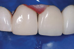 Figure 8  Immediate postoperative view. The long, infinity-edge margin allowed an ideal esthetic result.