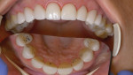 Static and dynamic occlusal adjustment.