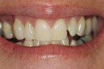 Figure 1  Pretreatment view of full smile.