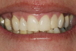 Figure 2  Posttreatment view of teeth Nos. 9 and 10 esthetically restored with direct resin veneers (Premise).