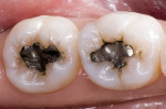 Figure 4 Preoperative occlusal view of defective amalgam restorations with recurrent decay.