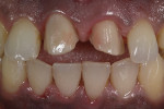 A wash bake of dentine was added onto the zirconia coping to match the stump shade of the prepped veneer of tooth No. 9.