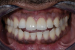 Post-treatment clinical frontal retracted view showing an excellent porcelain match on Nos. 8 and 9. Note the perfect matching between the final restorations and the natural dentition.