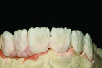 Fig 15. Second buildup consisting of dentin, enamel, and pink porcelain for gingival enamel.