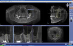 Figure 3  Galileos® CBCT scan data examples (Sirona Dental Systems).