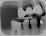 Fig 5. Initial radiographs showing dental condition and bone levels.