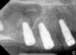 "Fig 11. Post-surgery radiographs showing bilateral sinus ""bumps."""