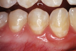 Figure 2b  he nano-ionomer's shade was slightly lighter than the surrounding enamel, 10 months after restoration.