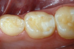 Figure 7b   Distoocclusal nano-ionomer repair of primary molar, also 12 months posttreatment.