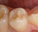 Fig 9. Caries-free tooth ready for restoration.