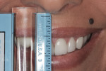 Fig 5. Central incisor display measured during a full smile.