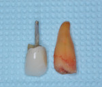 Fig 2. Extraction of the root of No. 6 adjacent to the PFM crown containing the prepared tooth structure and post.