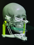 The file was converted into STL format for medical modeling so that Culp could import it into his CAD software for prosthetic design.