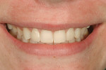 "Figure 14  View of the patient""s final smile makeoverdemonstrating the youthful appearance thatwas achieved with minimally invasive dentistry."