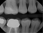 Figure 7. Partial-coverage seated radiograph.