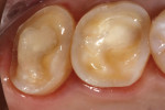 Occlusal view of tooth preparation on teeth Nos. 14 and 15.