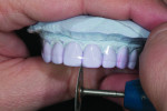 Figure 9. Bevelling the lingual incisal edge with a green rubber wheel.