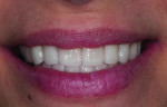 Figure 15. Patient showing a natural smile with final restorations.