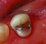 Figure 1. A failing conservative amalgam restoration. Cusps are not undermined and sufficient tooth structure remains to restore this tooth predictably with a composite resin restoration.