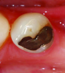 Figure 2. Upon removal of the restoration, the lingual, distal, and mesial walls will be completely undermined. A composite resin restoration will not adequately support the tooth structure, and a restoration such as a bonded ceramic onlay would more ideally support the tooth while replacing missing structure. In this case, full coverage may not be warranted due to ample and sound buccal tooth structure.