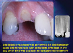 Figure 9. Endodontic treatment was performed on an emergency basis and temporized with composite until later in the day when time was available to complete the treatment.