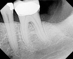 Figure 11  Periapical radiograph of site No. 18,taken 3 months after extraction, shows ridgeresorption and IAN proximity.