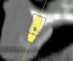 Figure 23  With simulated placement of a 3.3mm x 8 mm implant at site #8 showing limitedbone width and proximity to nasal floor. Pleaseunderstand these are photos from an older dentalscan and the quality is never that of newerdigital radiographs.