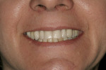Figure 28  Smile view of the inserted prosthesis.(Prosthesis by Dr. Bruce Valauri.)