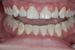 Patient presentation following orthodontic treatment. Note the gingival hypertrophy biofilm plaque white spot lesions.