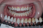 Pre-treatment photograph before in-office whitening. Note the lack of hygiene compliance.