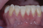 Pre-surgery: gingival recession and lack of attached gingiva.